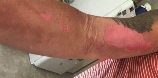 Прикосновение, сопровождающееся адским жжением: обрезав растение, юноша получил ожоги третьей степени